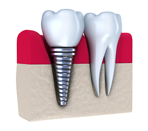Dental Implants in Mill Creek, WA